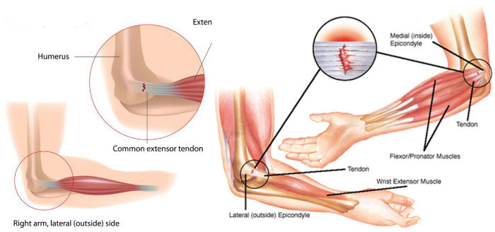 Anatomy of elbow joint