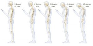 Best Posture Braces for back pains