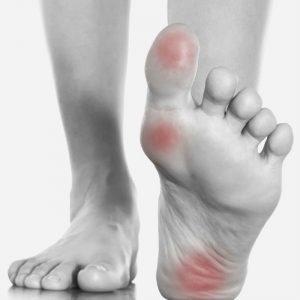 Best Foot Braces for Pain