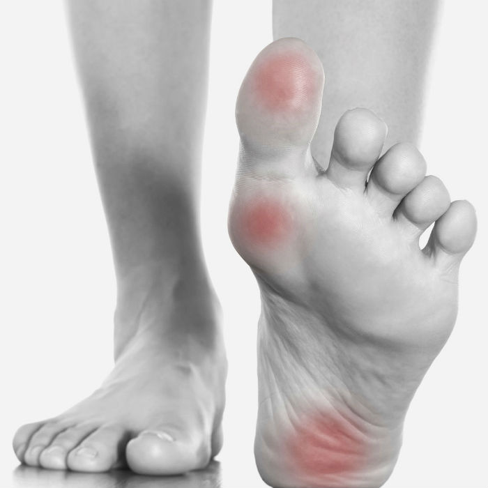 Best Foot Braces for Pain