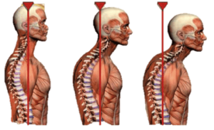 neck posture 32