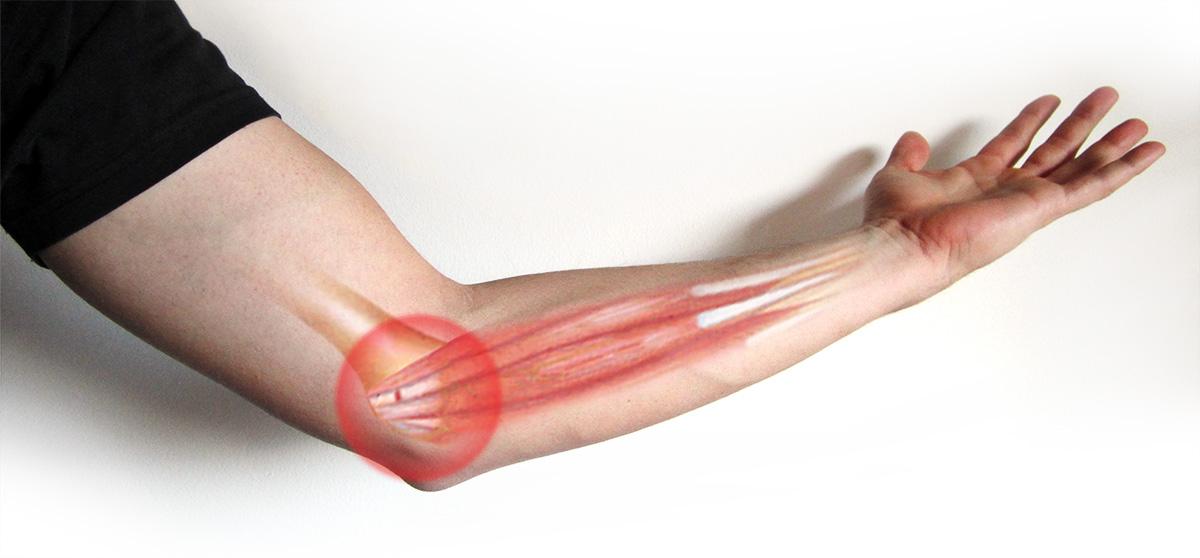elbow braces for tendonitis