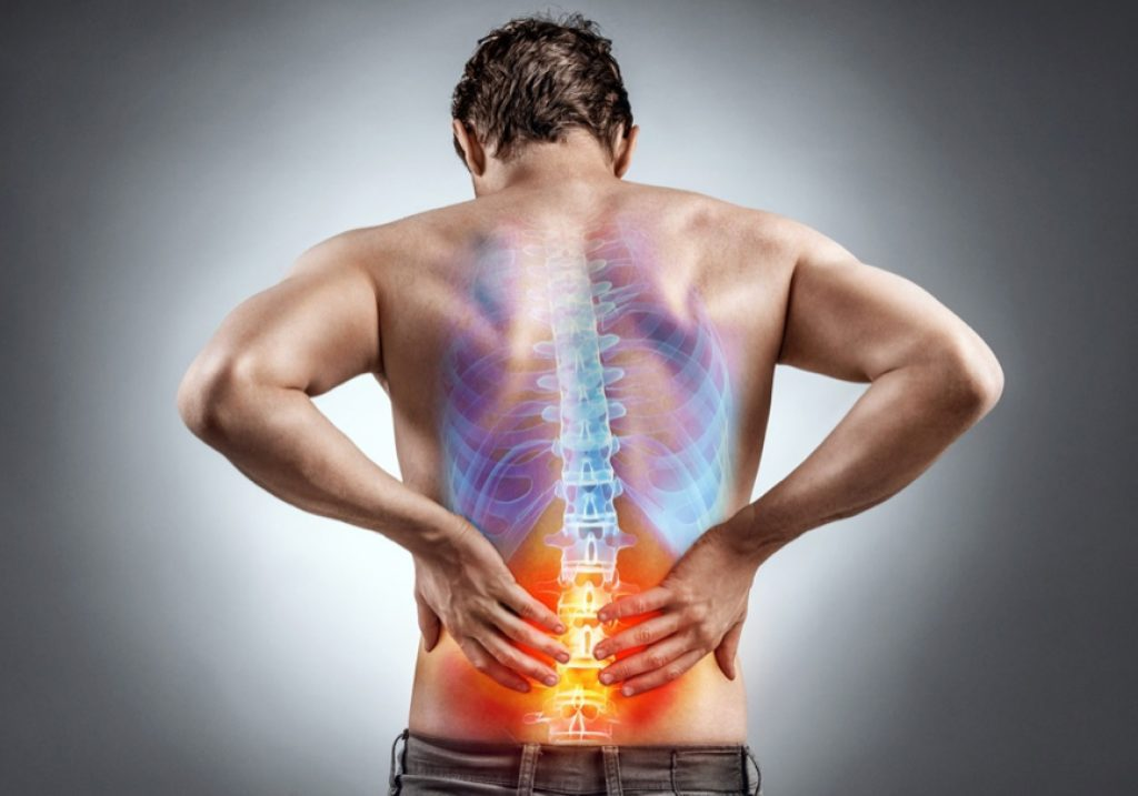 back braces for back pain
