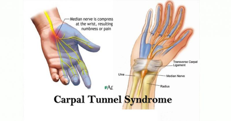 wrist braces for carpel tunnel syndrome