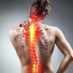 Best Back Braces for Scoliosis - Reviews & Buyer's Guide [Adults & Kids]