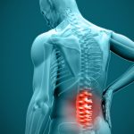 Best Back Braces For Herniated Disc - Reviews, Specs & Buyers's Guide