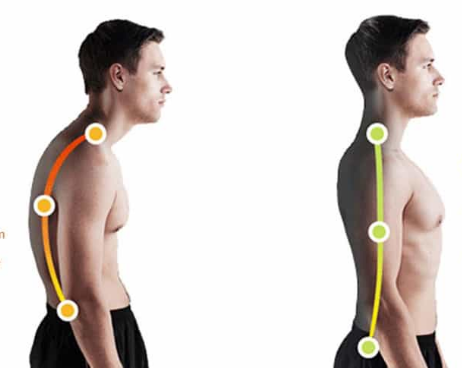 back braces for posture